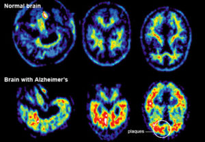 advances-in-treating-alzheimers-af1