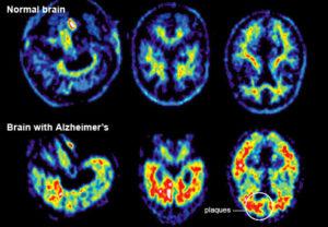 advances-in-treating-alzheimers-af1